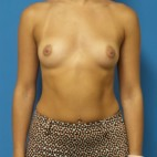 Before Photo - Breast Augmentation - Case #16564 - Submuscular Breast Augmentation 435cc Silicone Gel Implants - Frontal View