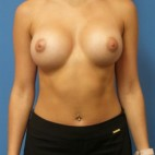 After Photo - Breast Augmentation - Case #16564 - Submuscular Breast Augmentation 435cc Silicone Gel Implants - Frontal View