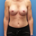 After Photo - Breast Augmentation - Case #16574 - Submuscular Breast Augmentation Right Side: 330cc, Left Side: 295cc Moderate Plus Projection Silicone Gel Implants - Frontal View