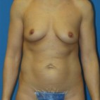 Before Photo - Breast Augmentation - Case #16579 - Submuscular Breast Augmentation 420cc Shaped Moderate Projection Silicone Gel Implants - Frontal View