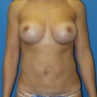 After Photo - Breast Augmentation - Case #16579 - Submuscular Breast Augmentation 420cc Shaped Moderate Projection Silicone Gel Implants - Frontal View