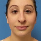 Before Photo - Nose Surgery - Case #16583 - Rhinoplasty - Frontal View