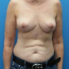 After Photo - Breast Reduction - Case #16660 - Bilateral Breast Reduction - Frontal View