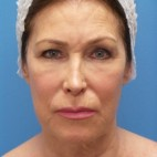 Before Photo - Facelift - Case #16689 - Facelift/ Upper Blepharoplasty/Laser Resurfacing to Full Face     2 months post-op - Frontal View