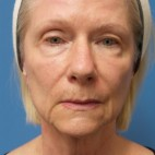 Before Photo - Facelift - Case #16801 - Facelift/Upper Blepharoplasty     2 months post-op - Frontal View
