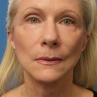 After Photo - Facelift - Case #16801 - Facelift/Upper Blepharoplasty     2 months post-op - Frontal View