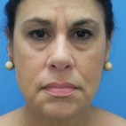 Before Photo - Facelift - Case #16824 - Facelift/Lower Blepharoplasty/Browlift     3 months post-op - Frontal View