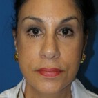 After Photo - Facelift - Case #16824 - Facelift/Lower Blepharoplasty/Browlift     3 months post-op - Frontal View