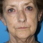 Before Photo - Facelift - Case #16827 - Facelift/Liposuction of the Neck/Laser Resurfacing to Full Face     3 months post-op - Frontal View