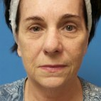 Before Photo - Facelift - Case #16836 - Facelift/Rhinoplasty/Laser Resurfacing to Full Face - Frontal View