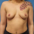 Before Photo - Breast Augmentation - Case #16839 - Submuscular Breast Augmentation 420cc Shaped - Medium Height Silicone Gel Implants - Frontal View