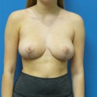 After Photo - Breast Reduction - Case #16886 - Bilateral Breast Reduction - Frontal View