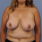 Before Photo - Breast Reduction - Case #16902 - Frontal View