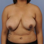 Before Photo - Breast Reduction - Case #16905 - Frontal View