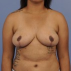 After Photo - Breast Reduction - Case #16905 - Frontal View