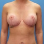 After Photo - Breast Lift - Case #16926 - Breast Lift with Mesh/Liposuction to Abdomen - 3 months post-op - Frontal View