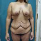 Before Photo - Plastic Surgery After Dramatic Weight Loss - Case #17213 - Standard Abdominoplasty after massive weight loss - Frontal View