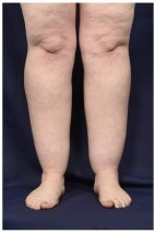 Before Photo - Liposuction - Case #18236 - Frontal View