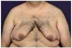 Before Photo - Gynecomastia - Case #18241 - Frontal View