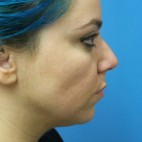 Before Photo - Nose Surgery - Case #18247 - 29 year old  -  Rhinoplasty/Chin Augmentation/Submental Liposuction to Neck  -  2 months post-op - Frontal View