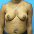 After Photo - Breast Lift - Case #18249 - 39 year old  - Bilateral Breast Lift  - 3 months post-op - Frontal View