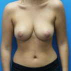 After Photo - Breast Reduction - Case #18264 - 20 year old  -  Bilateral Breast Reduction   -  3 months post-op - Frontal View