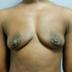 Before Photo - Breast Augmentation - Case #18341 - Frontal View
