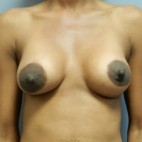 After Photo - Breast Augmentation - Case #18344 - Frontal View