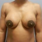 After Photo - Breast Augmentation - Case #18342 - Frontal View