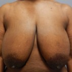 Before Photo - Breast Lift - Case #18367 - Mastopexy  - Frontal View