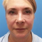 After Photo - Facelift - Case #18368 - 57 year old  -  Facelift/Laser Resurfacing under eyes  -  1 year - 7 months post-op - Frontal View