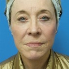 After Photo - Facelift - Case #18369 - 68 year old  -  Facelift  -  3 months post-op - Frontal View
