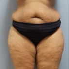 Before Photo - Tummy Tuck - Case #18395 - Abdominoplasty - Frontal View