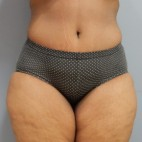 After Photo - Tummy Tuck - Case #18395 - Abdominoplasty - Frontal View