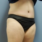 After Photo - Tummy Tuck - Case #18429 - Abdominoplasty - Oblique View