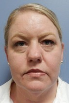 Before Photo - Eyelid Surgery - Case #18430 -  Blepharoplasty - Frontal View