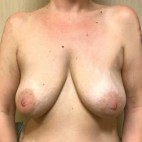 Before Photo - Breast Augmentation - Case #18624 - Breast Augmentation/Mastopexy - Frontal View