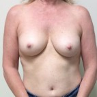 Before Photo - Breast Reconstruction - Case #18633 - Nipple sparing mastectomies with immediate breast reconstruction with tissue expander to implant  - Frontal View