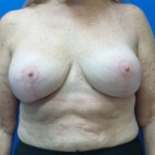 After Photo - Breast Augmentation - Case #18634 - Breast Augmentation Revision - Frontal View