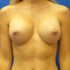 After Photo - Breast Augmentation - Case #18647 - Silicone Breast Augmentation - Frontal View