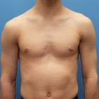 After Photo - Gynecomastia - Case #18701 - 17-year old  -  Excisional Gynecomastia right breast - Frontal View