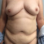 Before Photo - Breast Reconstruction - Case #18703 - Bilateral Nipple Sparing DIEP Flap Breast Reconstruction - Frontal View