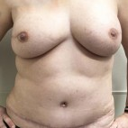 After Photo - Breast Reconstruction - Case #18703 - Bilateral Nipple Sparing DIEP Flap Breast Reconstruction - Frontal View
