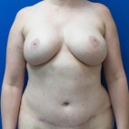 After Photo - Breast Reconstruction - Case #18704 - Bilateral Nipple Sparing DIEP Flap Breast Reconstruction - Frontal View