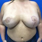 After Photo - Breast Reconstruction - Case #18708 - Right Tissue Expander to Implant Based Breast Reconstruction - Frontal View