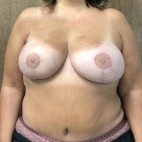 After Photo - Breast Reconstruction - Case #18709 - Bilateral DIEP Flap Breast Reconstruction - Frontal View