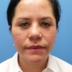 After Photo - Facelift - Case #18725 - 54-year old - Upper & Lower Blepharoplasty/Facelift/Fat Grafting  to  Upper Cheeks & Lower Lids/Skin Resurfacing to both cheeks   3 months post-op - Frontal View