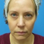 Before Photo - Facelift - Case #18861 - 54-year old  -  Facelift/Upper Blepharoplasty/Lower Lid Fat Grafting & TCA Peel   3-months post-op - Frontal View