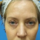 Before Photo - Eyelid Surgery - Case #18862 - 54 year old  -  Upper Blepharoplasty/Lower Eyelid Fat Grafting & TCA Peel.  3 months Post-op - Frontal View