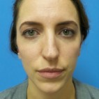 Before Photo - Nose Surgery - Case #18865 - 31 year-old  -  Open Rhinoplasty/Endoscopic Browlift  -  3 months post-op - Frontal View